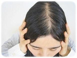 薄毛が目立たない、かわいいヘアスタイル10選